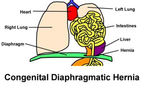 Congenital diaphragmatic hernia thesis pdf